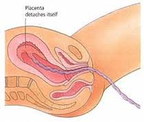 delivery of placenta